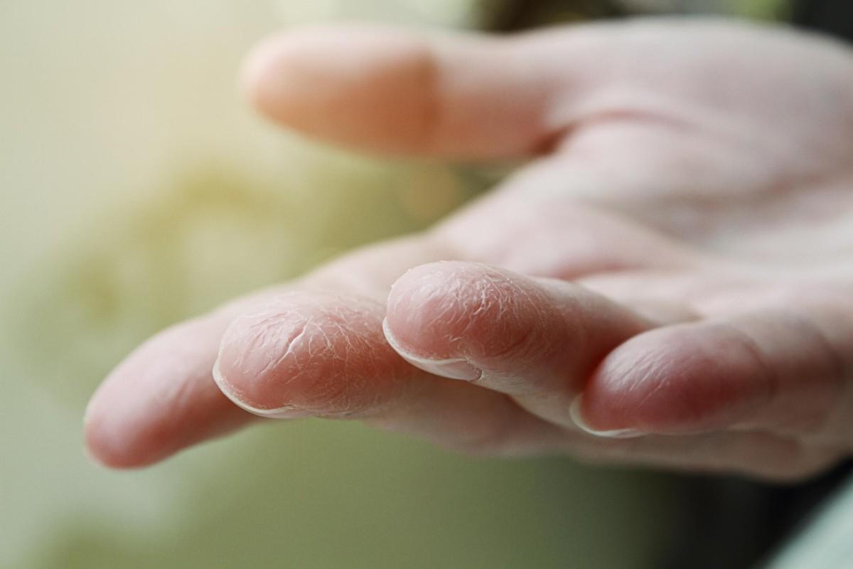 افضل طريقه لترطيب يديك .. إليك أبرز الوصفات من الخبراء