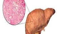 علاج الكبد الدهني بالاعشاب