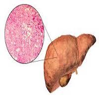 أعراض سرطان الكبد المتأخرة .. وهل فعلا سرطان
