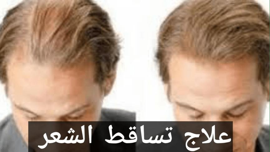 علاج تساقط الشعر للسيدات