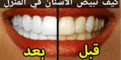 كيف تبيض الاسنان في المنزل