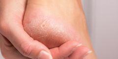 علاجات منزلية لخشونة وتشقق القدمين