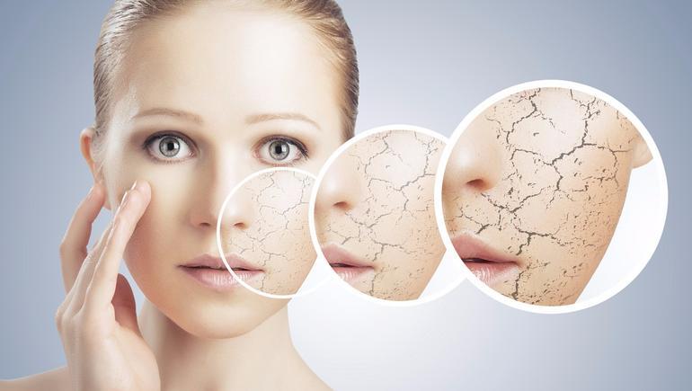 جفاف البشرة أو جفاف الجلد