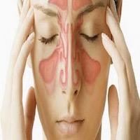التهاب الجيوب الأنفية بين الأعراض وسبل العلاج