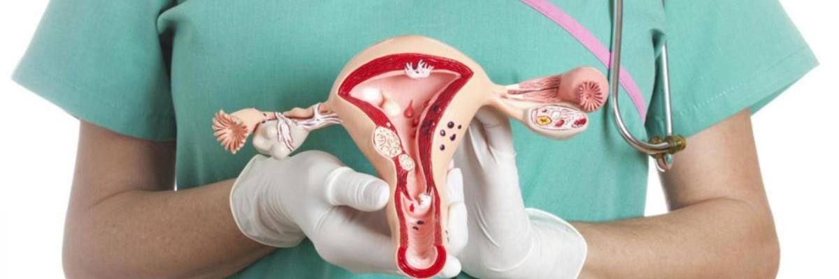 col - سرطان عنق الرحم : الأسباب، الأعراض والعلاج