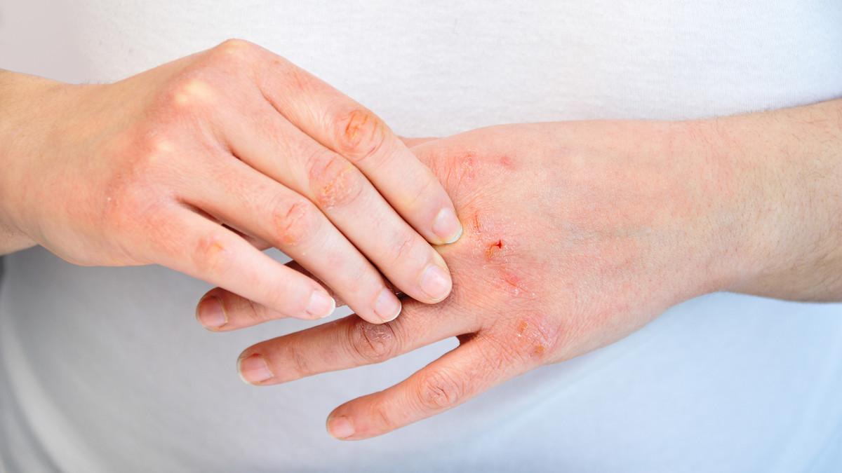 eczema - الأكزيما أو التهاب الجلد التماسي الأسباب و الأنواع و طرق العلاج