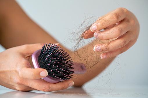 10 وصفات طبيعية لعلاج تساقط الشعر