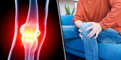 التهاب المفاصل : الأسباب والعلاج