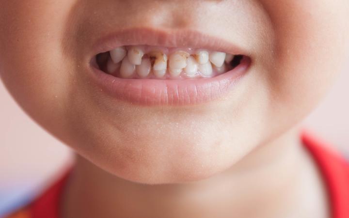 تسوس الاسنان 1 - اسباب تسوس الاسنان وطرق الوقاية منه