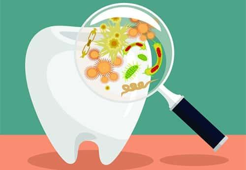 تسوس الاسنان - اسباب تسوس الاسنان وطرق الوقاية منه