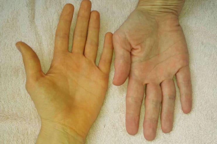 احذر من أسباب اصفرار اليدين