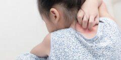 ما هي أهم أسباب الحكة عند الأطفال ؟!