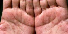 هذه هي أبرز أعراض مرض الزهري عند الرجال