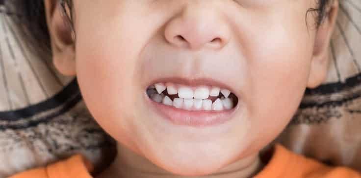 الاسنان اثناء النوم 1 - صرير الاسنان اثناء النوم وكيفية التخلص منه