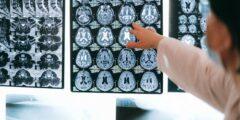 تعرفي على أبرز أعراض ضمور المخ عند الأطفال وطرق العلاج