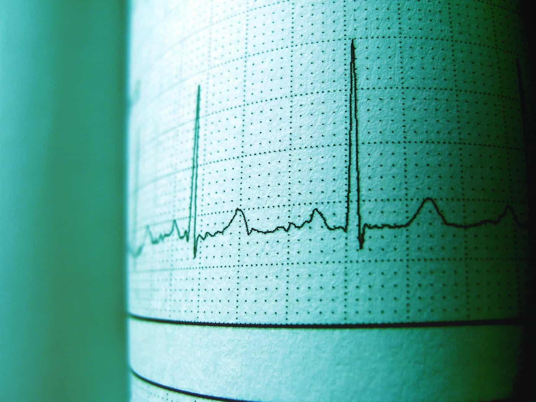 عدم انتظام ضربات القلب وطرق الوقاية