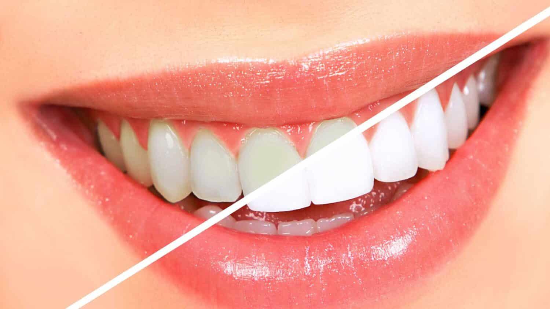 تبيض الاسنان 1 e1615745395869 - خلطة تبيض الاسنان