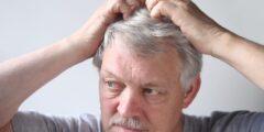 طرق علاج قشرة الشعر بالمنزل.. إليك أهم الوسائل للقضاء عليها