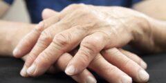 علاج التهاب المفاصل الروماتويدي بالمنزل.. إليك أفضل الطرق التي تساعدك على هذا المرض