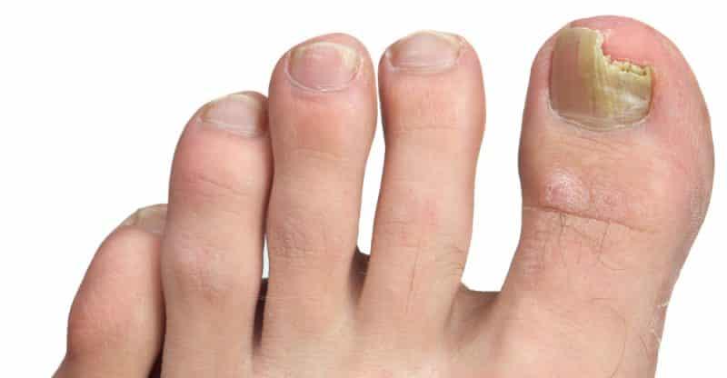 علاج فطريات أظافر القدم بالمنزل.. إليك أبرز الطرق البسيطة