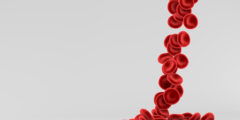 اعراض فقر الدم للحامل | اطعمة لعلاج فقر الدم للحامل