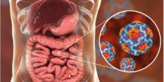 مرض السيلياك