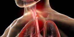 سرطان المريء الأسباب و الأعراض و العلاجات المتوفرة بالتفصيل