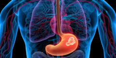 سرطان المعدة الأعراض و الاسباب و العلاج بالتفصيل