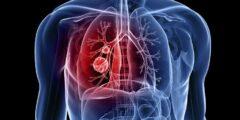 سرطان الرئة الأسباب و الأعراض و طرق العلاج بالتفصيل