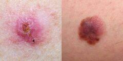سرطان الجلد الأسباب و الأعراض و طرق العلاج : كيف تحمي نفسك من سرطان الجلد .