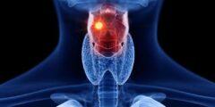 سرطان الحنجرة الأسباب و الأعراض و العلاج