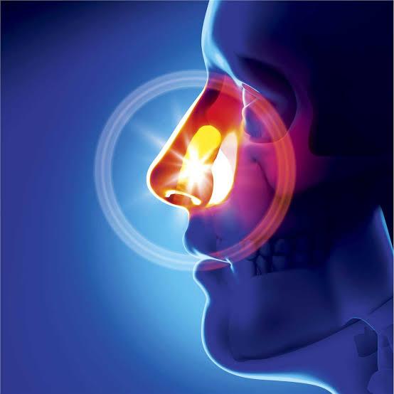 سرطان البلعوم الأنفي