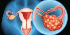 سرطان المبيض الأسباب و الأعراض و العلاج
