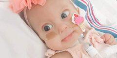 التثلث الصبغي 18 أو متلازمة إدواردز الأعراض و الأسباب و العلاج