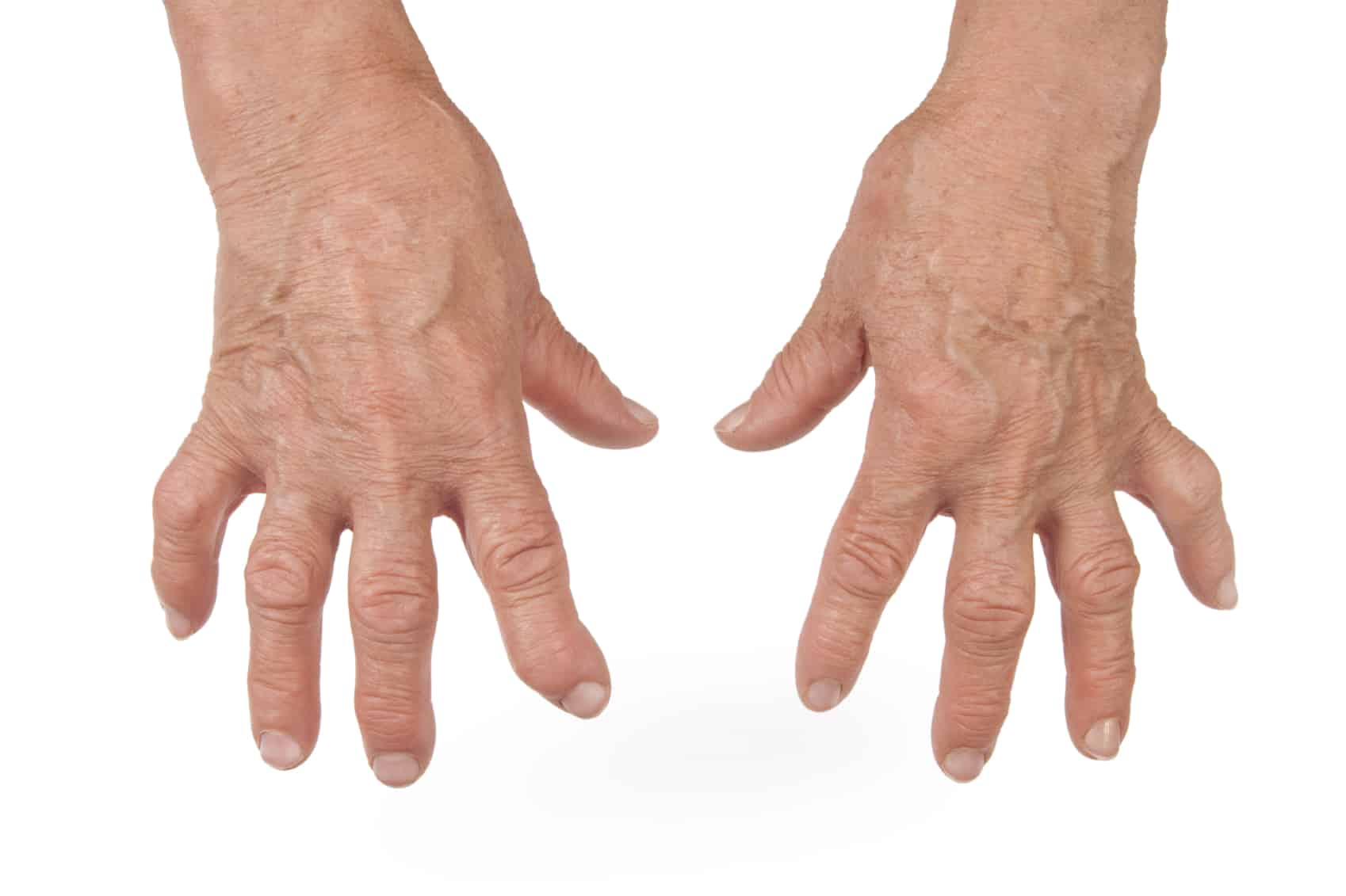 هذه هي أهم أعراض الإصابة بمرض الروماتويد