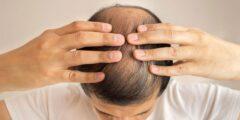 كيف أصبحت تركيا رائدة في مجال زراعة الشعر ؟
