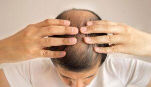 الشعر 300x173 - كيف أصبحت تركيا رائدة في مجال زراعة الشعر ؟