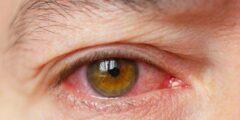 ما هي اعراض جفاف العين و الصداع؟