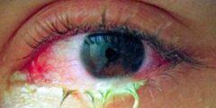 كيفية علاج التهاب ملتحمة العين؟
