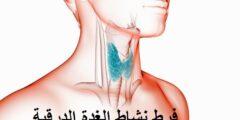 علاج فرط الغدة الدرقیة