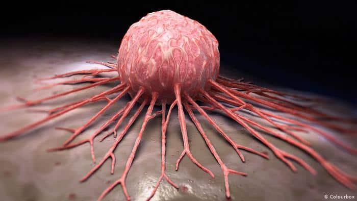 ما هو مرض السرطان و ما هي اعراضه؟